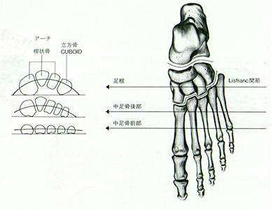 横アーチ構造
